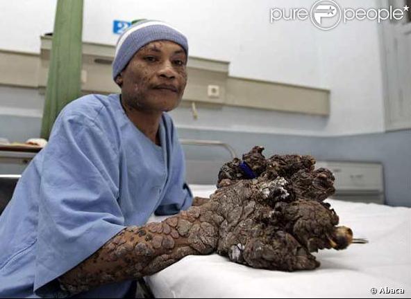 papillomavirus homme arbre