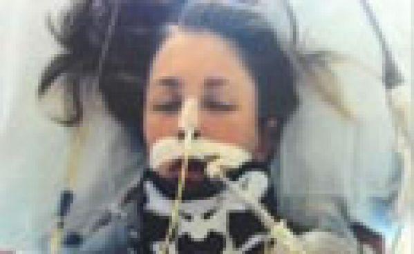 Une jeune femme survit à une décapitation